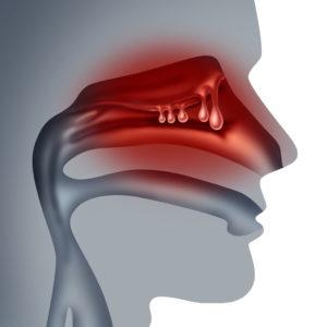 nasal polyps sinus allergy denton